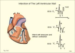 Load flow study tender heart
